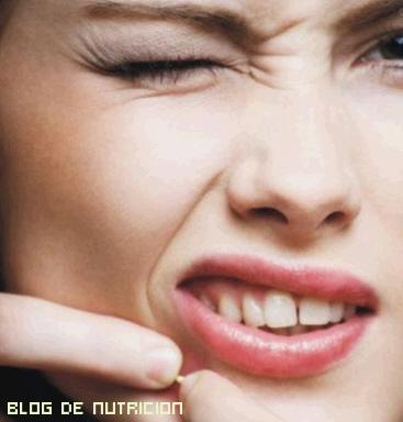 Tips contra el acné