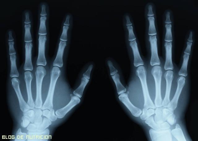 calcio para huesos