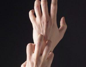 Alergias en las manos