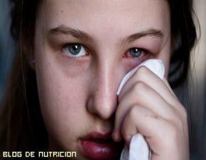 Remedios para los ojos rojos